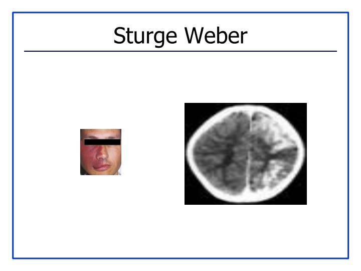 Sturge Weber
