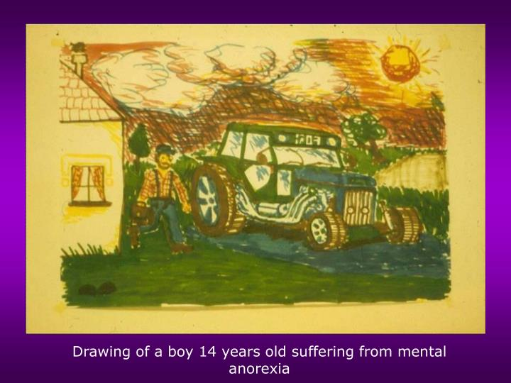 Drawing of a boy 14 years old suffering from mental anorexia