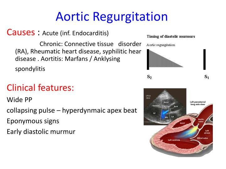 PPT - Cardiology for Finals FY1s Poornima Mohan & Ghazal ...  Aortic