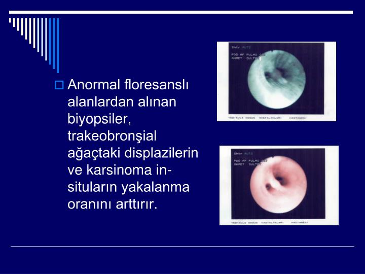 Anormal floresanslı alanlardan alınan biyopsiler, trakeobronşial ağaçtaki displazilerin ve karsinoma in-situların yakalanma oranını arttırır.