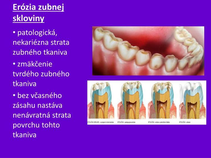 Erózia zubnej skloviny