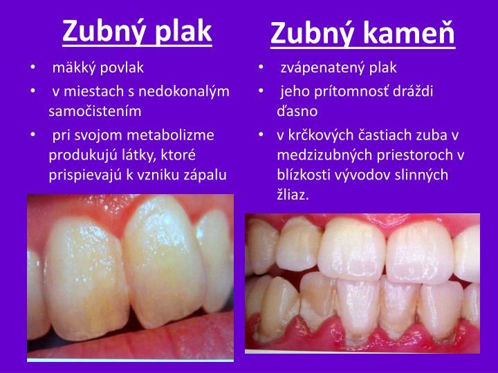 Zubný