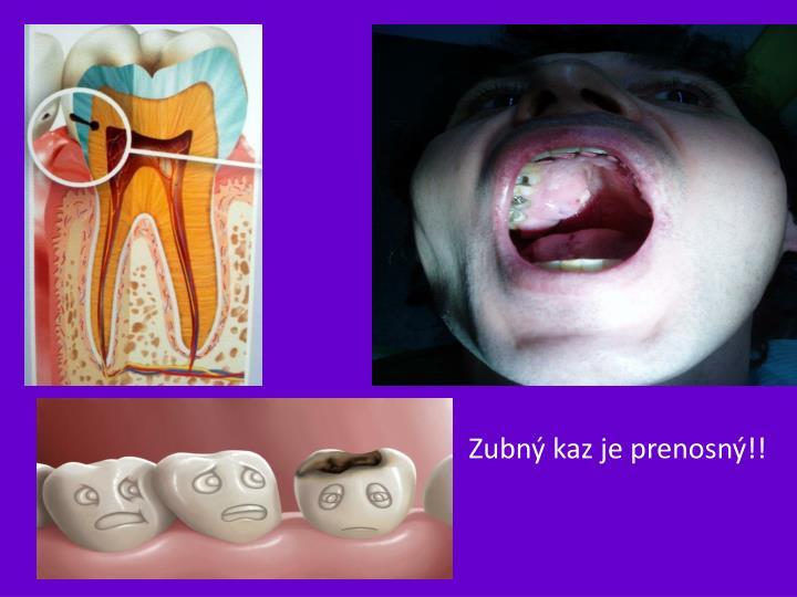 Zubný kaz je prenosný!!