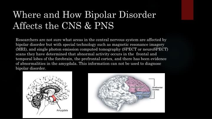 Where and How Bipolar Disorder Affects the CNS & PNS