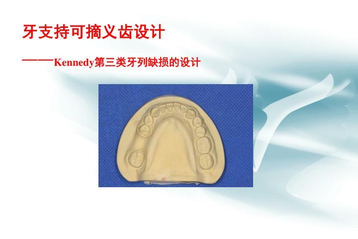 牙支持可摘义齿设计