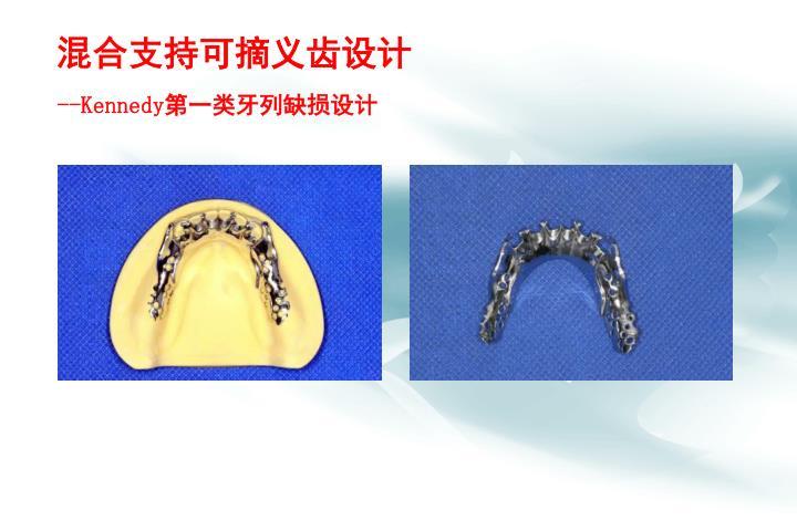 混合支持可摘义齿设计