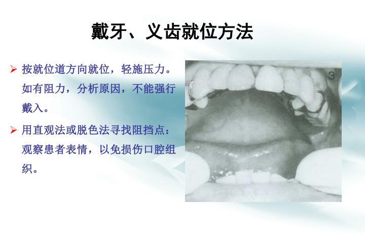 戴牙、义齿就位方法