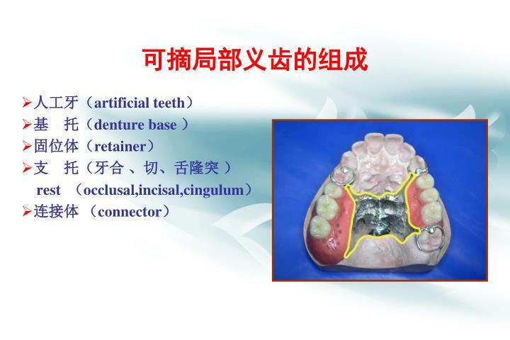 可摘局部义齿的组成