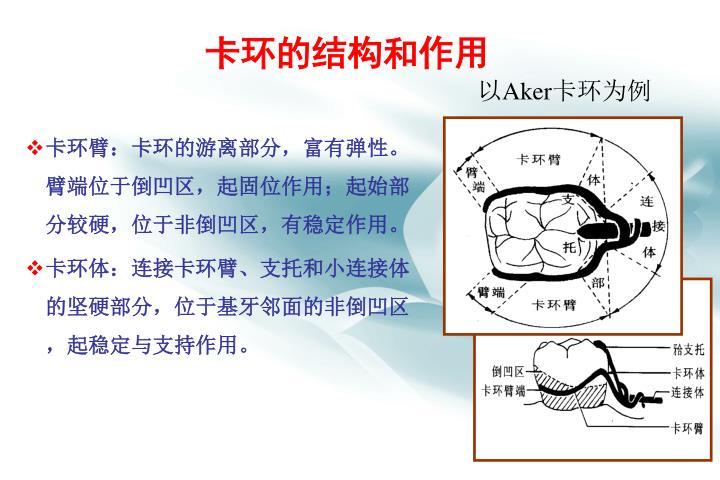 卡环的结构和作用
