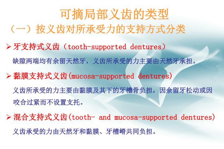 (一)按义齿对所承受力的支持方式分类