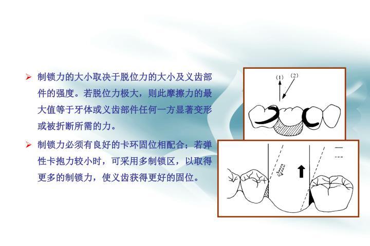 制锁力的大小取决于脱位力的大小及义齿部件的强度。若脱位力极大,则此摩擦力的最大值等于牙体或义齿部件任何一方显著变形或被折断所需的力。