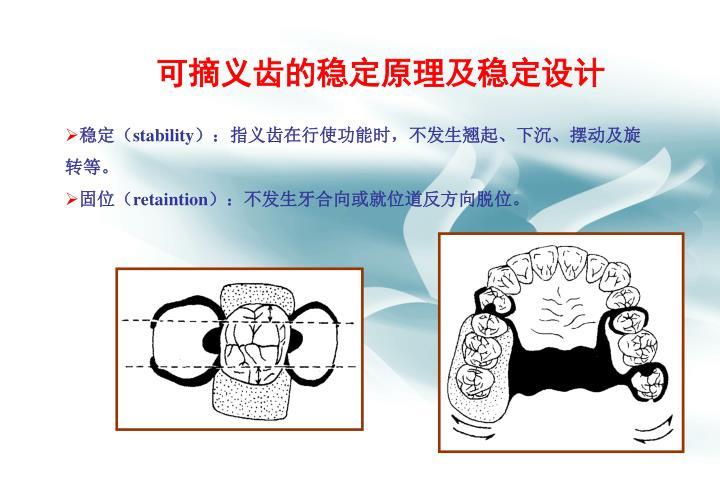 可摘义齿的稳定原理及稳定设计