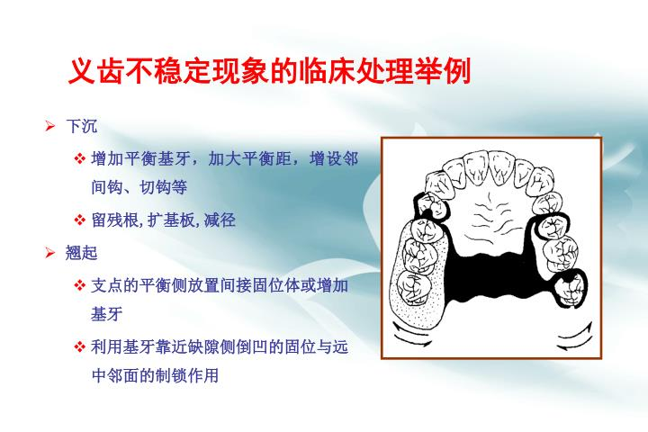 义齿不稳定现象的临床处理举例