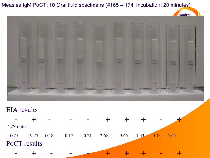 Measles IgM PoCT: 10 Oral fluid specimens (#165 – 174, incubation: 20 minutes)