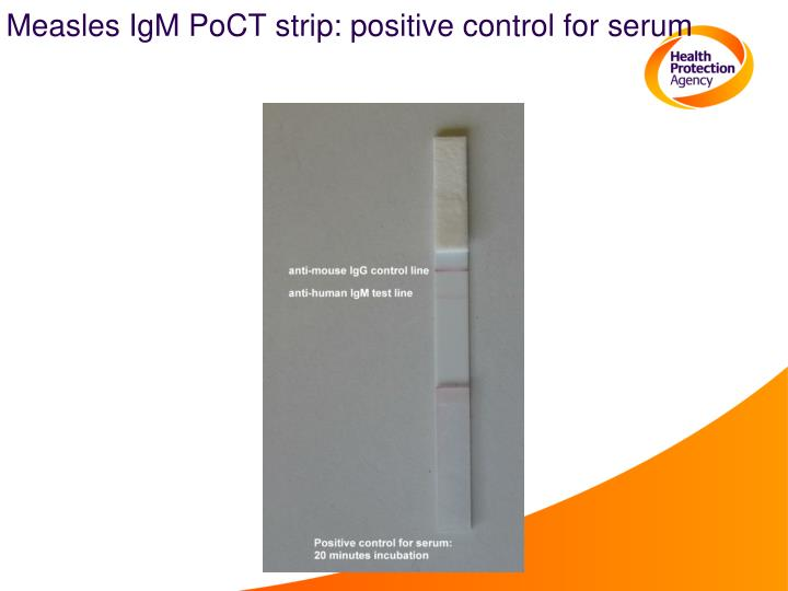 Measles IgM PoCT strip: positive control for serum