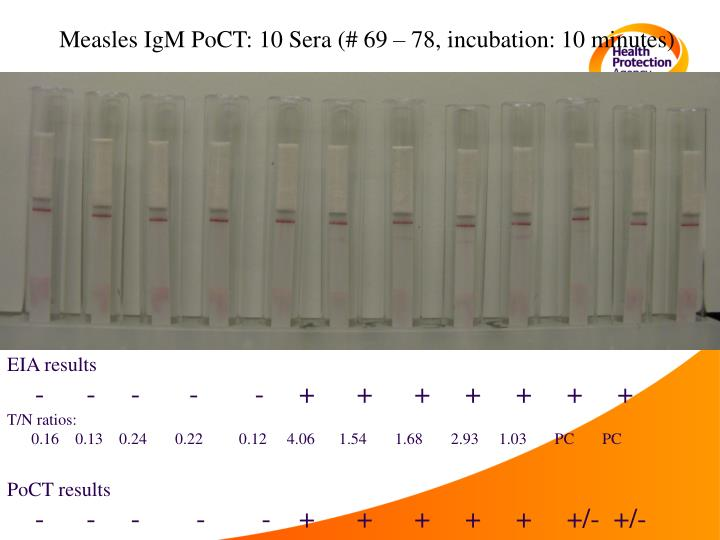 Measles IgM PoCT: 10 Sera (# 69 – 78, incubation: 10 minutes)