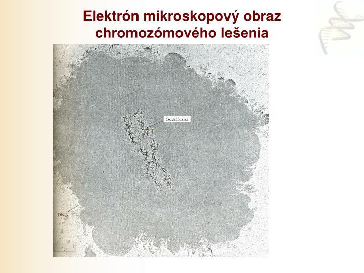 Elektrón mikroskopový obraz chromozómového lešenia