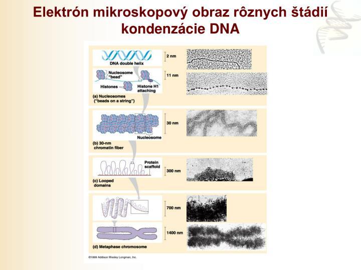 Elektrón mikroskopový obraz rôznych štádií kondenzácie DNA