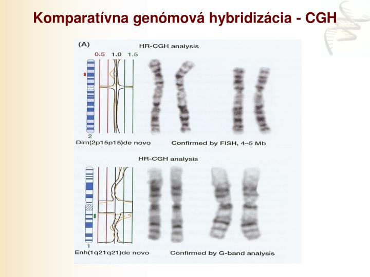 Komparatívna genómová hybridizácia - CGH