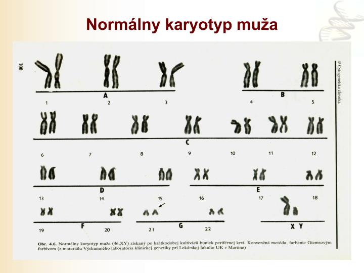 Normálny karyotyp muža