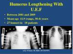 humerus lengthening with u e f
