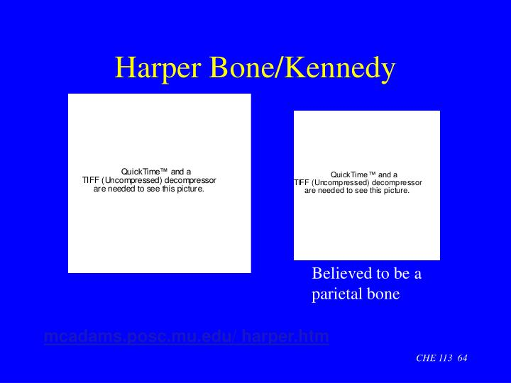 Harper Bone/Kennedy