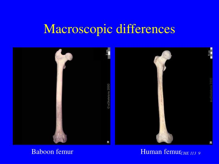 Macroscopic differences