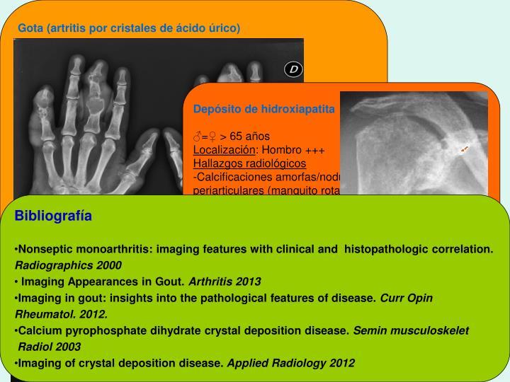 Gota (artritis por cristales de ácido úrico)