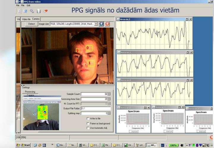 PPG signāls no dažādām ādas vietām