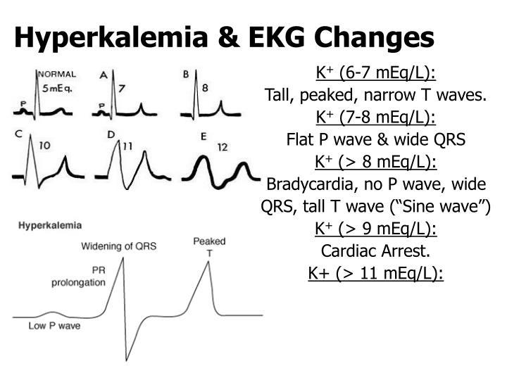 Hyperkalemia & EKG Changes