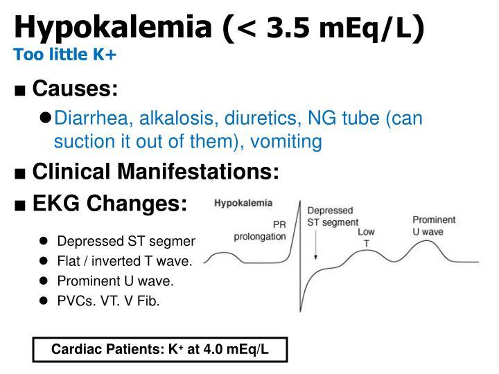 Hypokalemia (