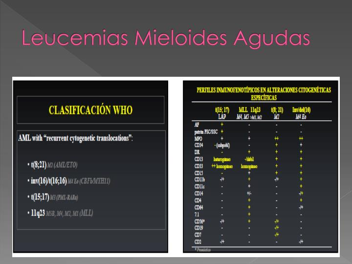 Leucemias Mieloides Agudas