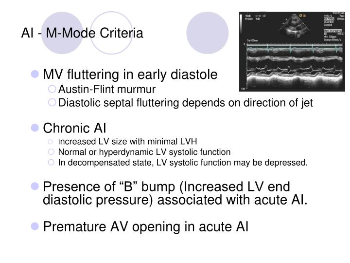 AI - M-Mode Criteria