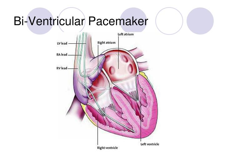 Bi-Ventricular Pacemaker
