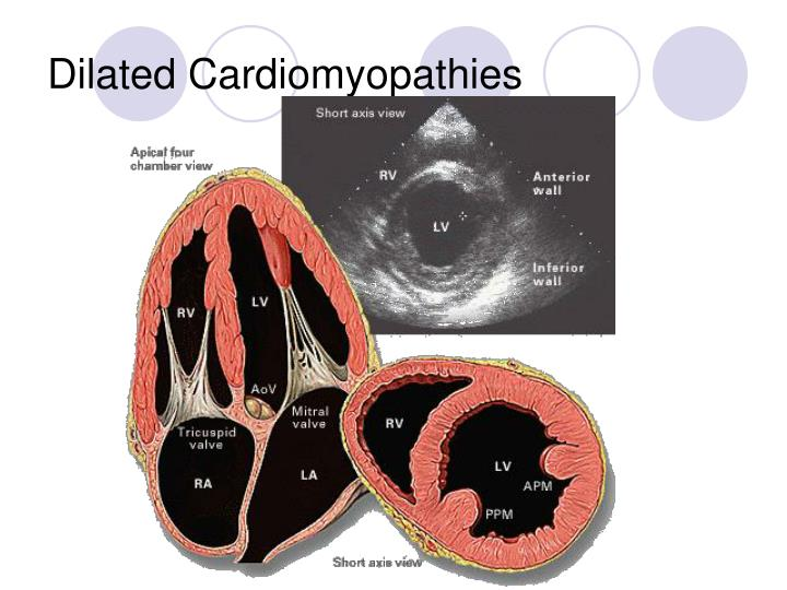 Dilated Cardiomyopathies