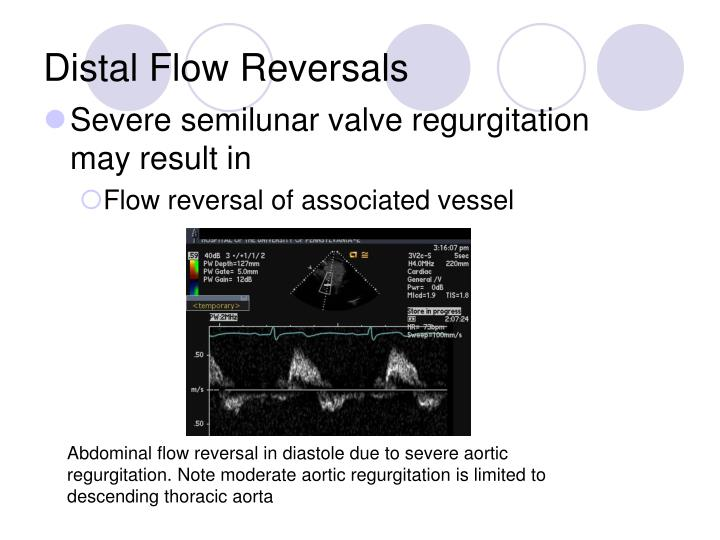Distal Flow Reversals