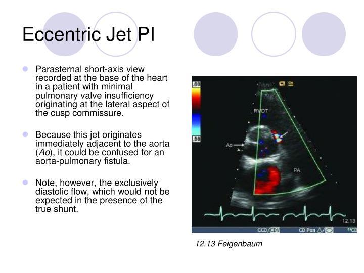 Eccentric Jet PI