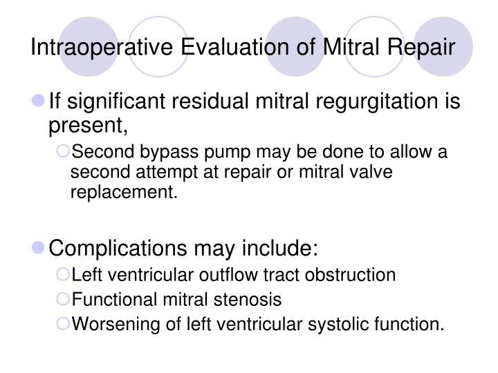 Intraoperative Evaluation of Mitral Repair