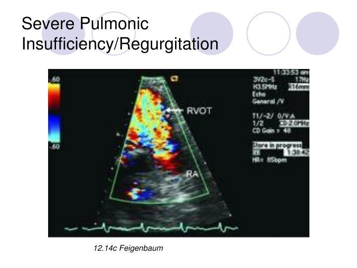 Severe Pulmonic Insufficiency/Regurgitation