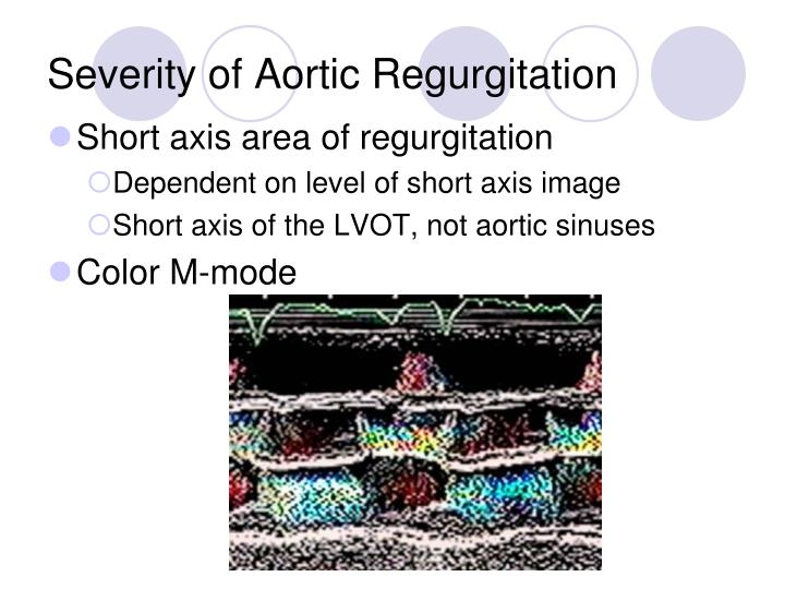 Severity of Aortic Regurgitation