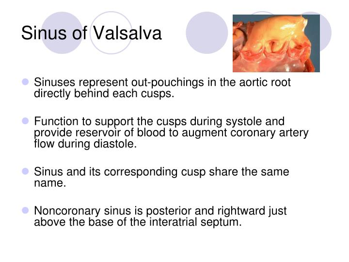 Sinus of Valsalva