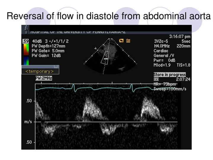 Reversal of flow in diastole from abdominal aorta