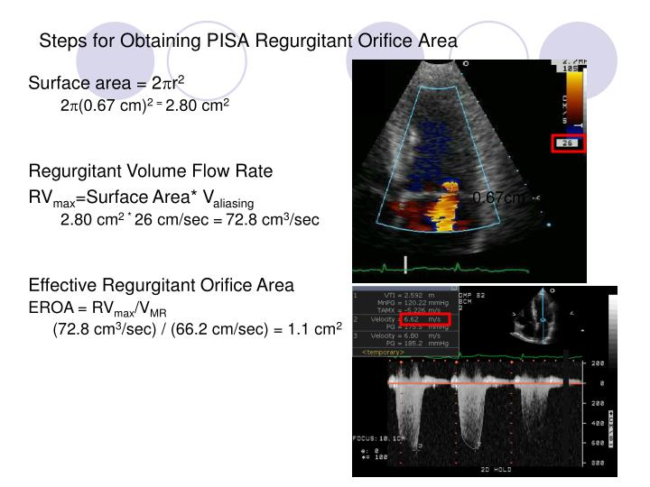 Steps for Obtaining PISA Regurgitant Orifice Area