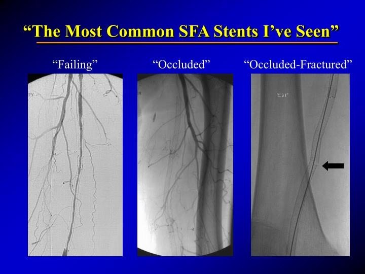 """The Most Common SFA Stents I've Seen"""