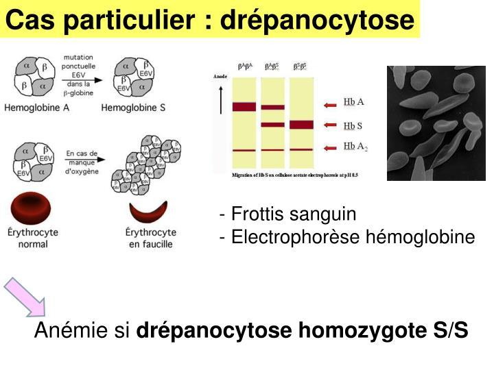 Cas particulier : drépanocytose