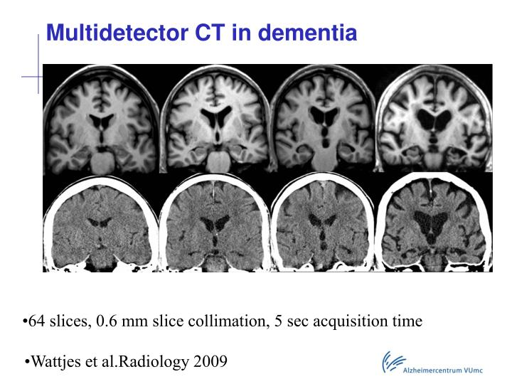 Multidetector CT in dementia