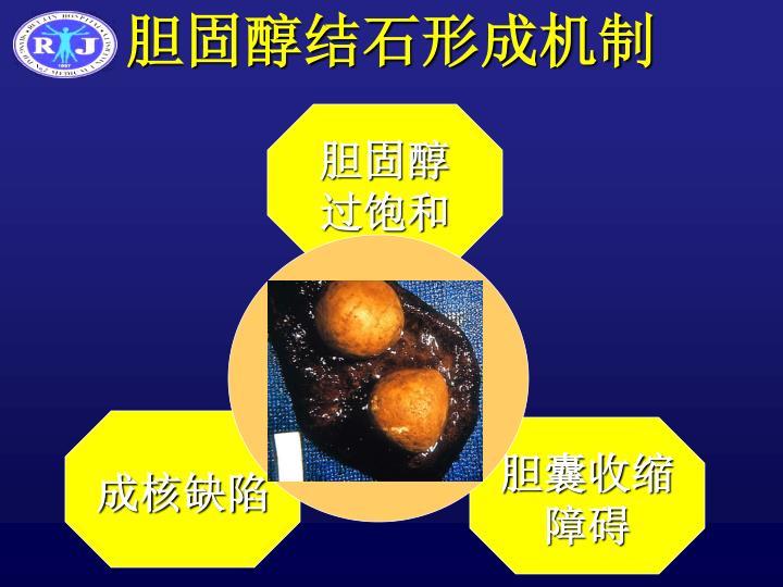 胆固醇结石形成机制