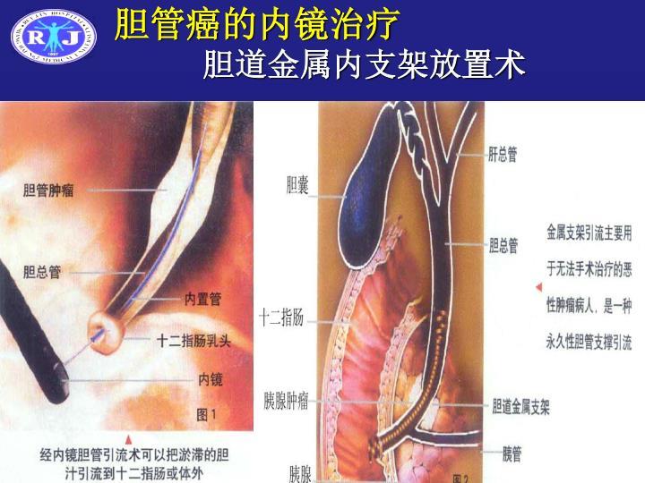 胆管癌的内镜治疗