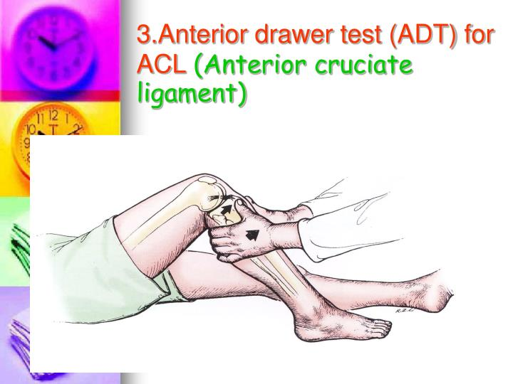 3.Anterior drawer test (ADT) for ACL