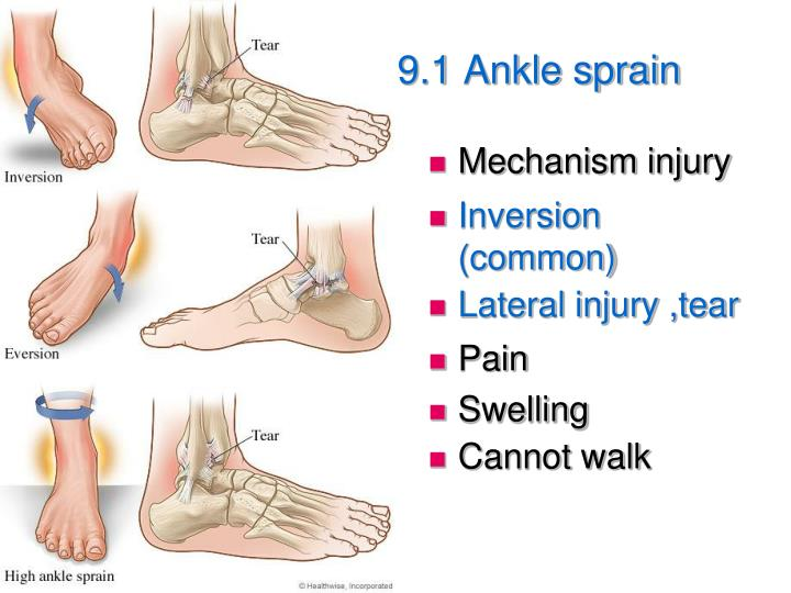 9.1 Ankle sprain